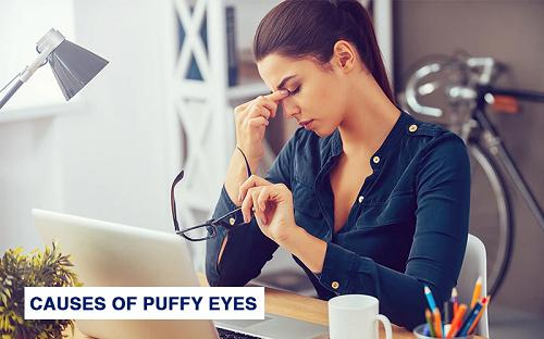 Top 7 Home Remedies To Get Rid Of Puffy Eyes