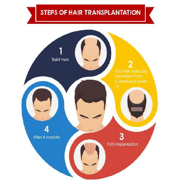 Are You Looking For a Best Hair transplant in Mumbai ?