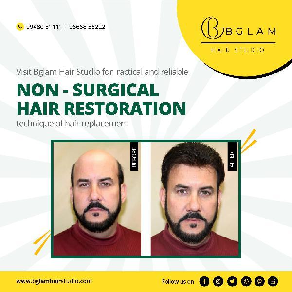 BGLAM HAIR REPLACEMENT STUDIO